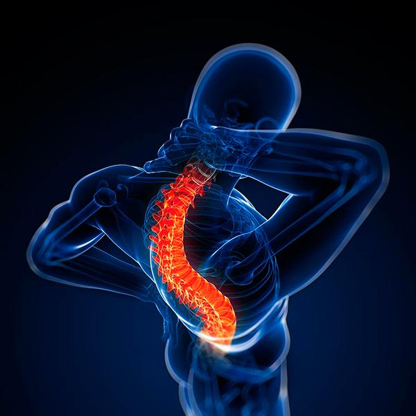 Клиническая картина полисегментарного остеохондроза