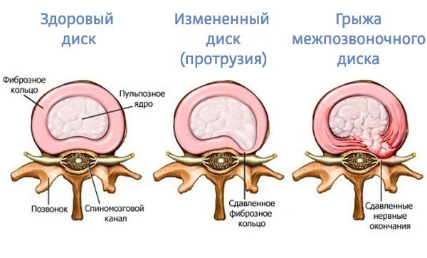 Клиника остеохондроза позвоночника