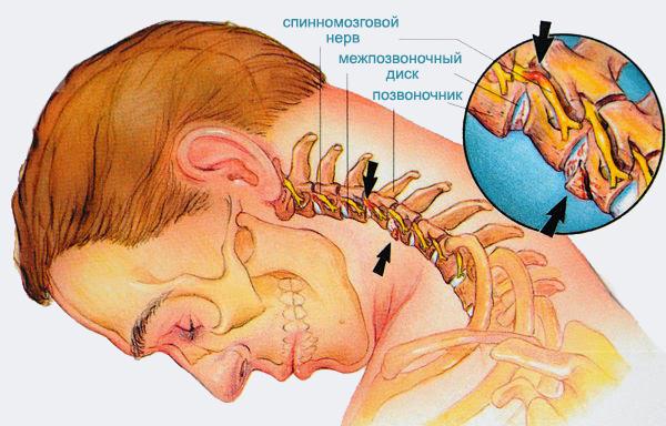 Корешковый синдром