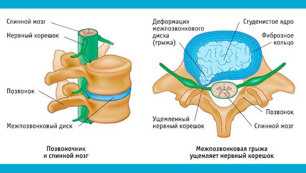 Последствия поясничного остеохондроза