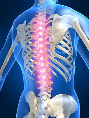 Причины распространенного остеохондроза