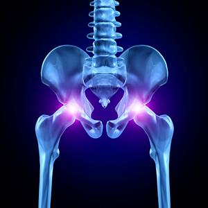 Причины тазобедренного сустава