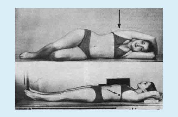 Рентген с функциональными пробами грудного отдела позвоночника в боковой проекции