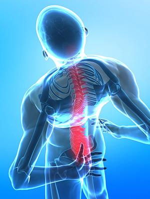 Симптомы и признаки полисегментарного остеохондроза
