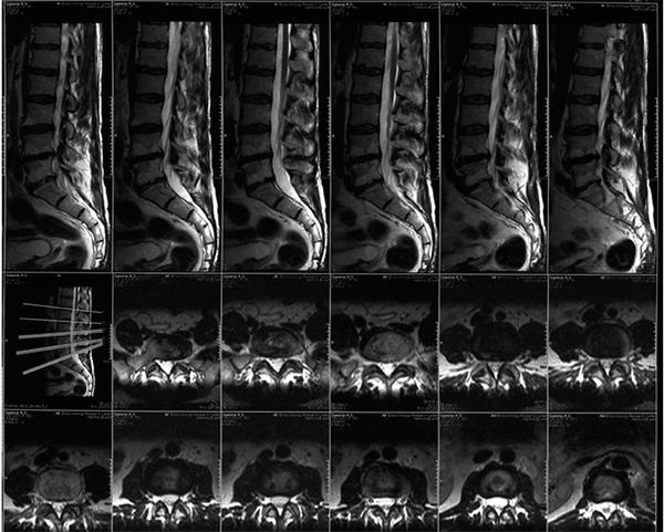Грыжа поясничного отдела позвоночника на снимке МРТ