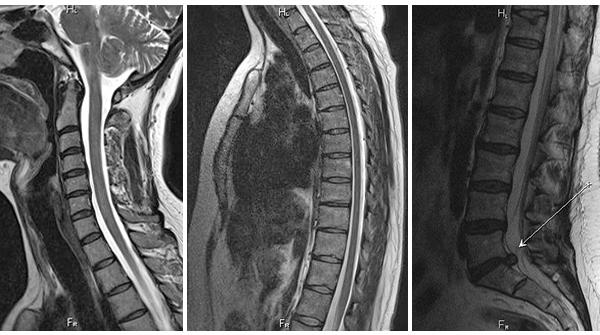 Что такое магнитно-резонансная томография позвоночника
