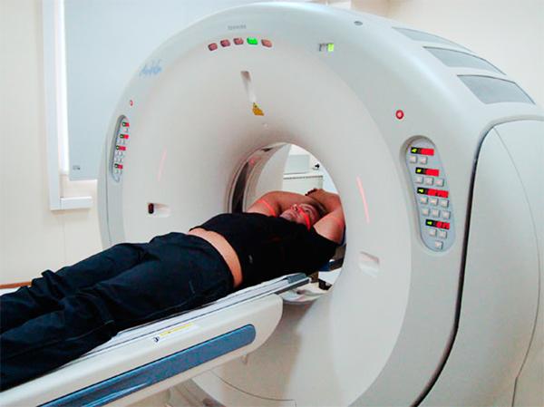 МРТ при радикулите