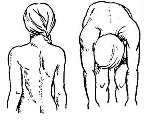Особенности второй степени сколиоза