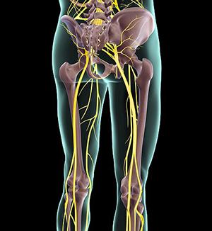 Симптоматика воспаления седалищного нерва
