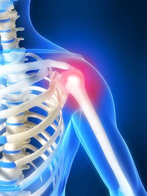 Диагностика остеохондроза плечевого сустава