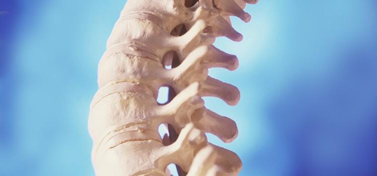 Межпозвонковый остеохондроз