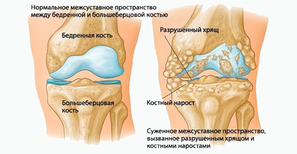 Нарушения при остеохондрозе коленного сустава