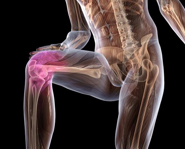воспаление коленного сустава как лечить народными средствами
