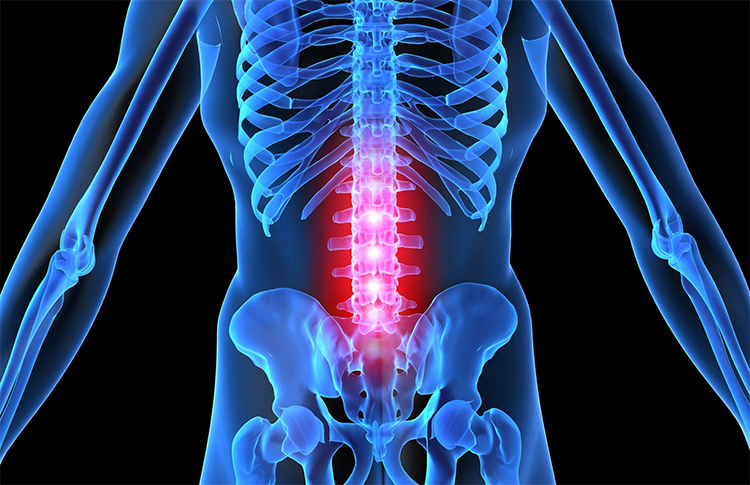 Остеохондроз поясничного отдела позвоночника симптомы и лечение