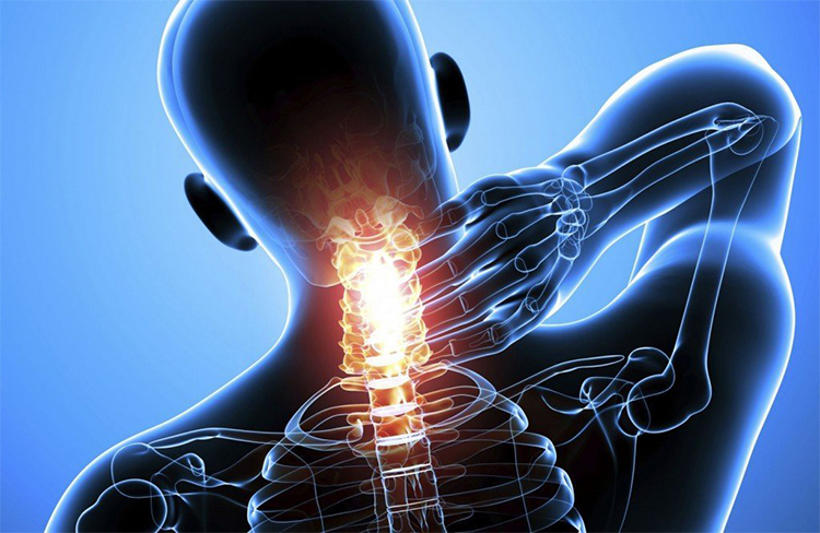 Остеохондроз с корешковым синдромом