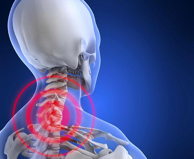 Как возникает и протекает остеохондроз шейного отдела позвоночника