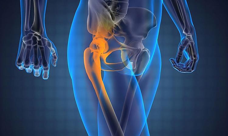 разрушение тазобедренного сустава лечение народными средствами