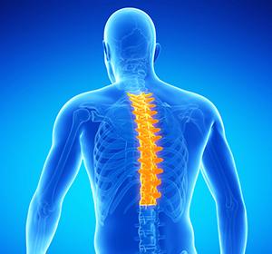 Признаки корешкового синдрома при грудном остеохондрозе