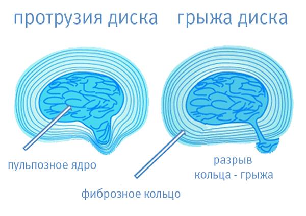 Осложнения полисегментарного остеохондроза