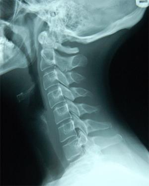 Диагностика распространенного остеохондроза