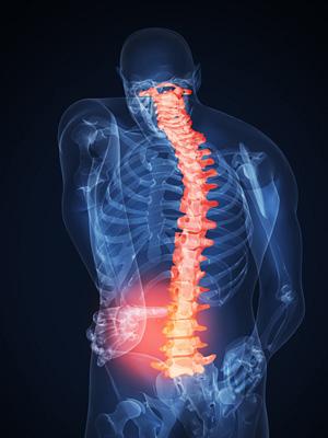 Симптомы межпозвонкового остеохондроза