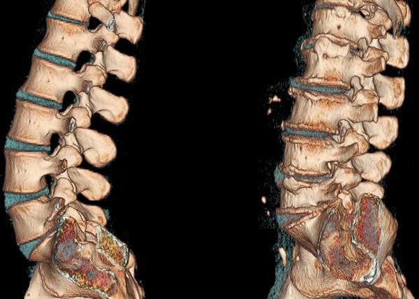 Снимки компьютерной томографии позвоночника