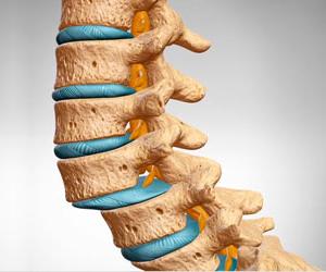 Степени межпозвонкового остеохондроза