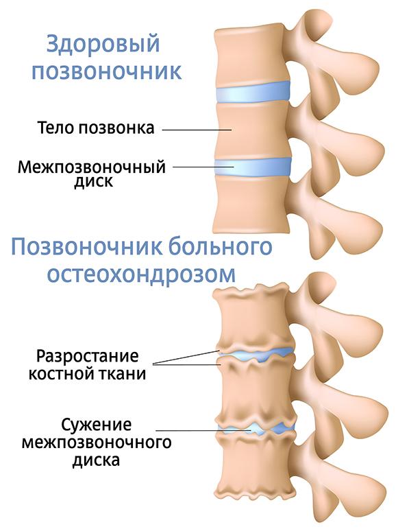 Степени и стадии остеохондроза
