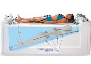 Вытяжение позвоночника: подводное, в домашних условиях, отзывы