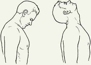 Лечение упражнениями синдрома позвоночной артерии