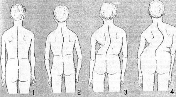 Сколиоз позвоночника: фото, лечение у взрослых в домашних условиях, симптомы