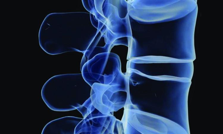 Деформация грудного отдела позвоночника
