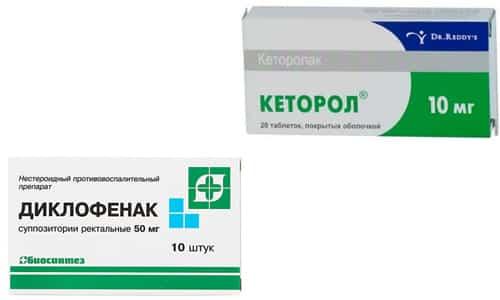 Кеторол и Диклофенак это противовоспалительные и обезболивающие препараты предназначенные для помощи лицам с симптомами остеохондроза
