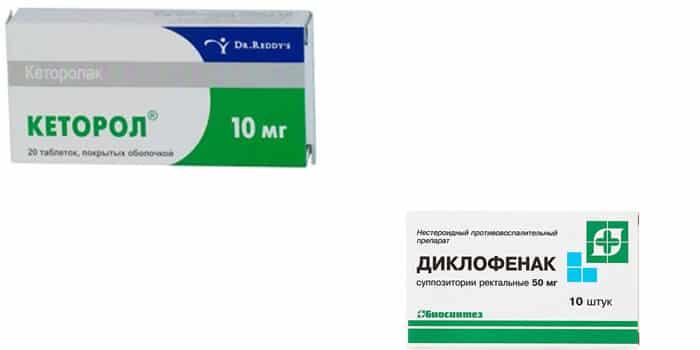 Что выбрать: Кеторол или Диклофенак