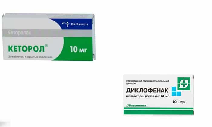 Обезболивающее при зубной боли