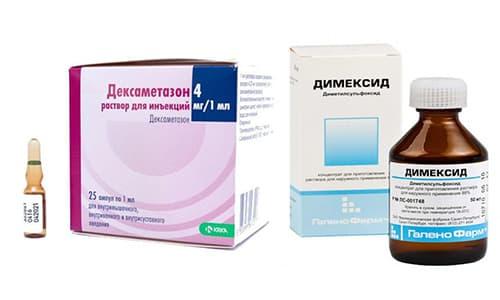 При лечении патологий суставов нередко применяются Димексид и Дексаметазон, которые оказывают быстрый положительный эффект