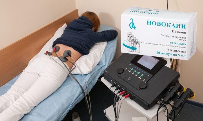 Электрофорез при остеохондрозе шейного, поясничного или грудного отдела позвоночника
